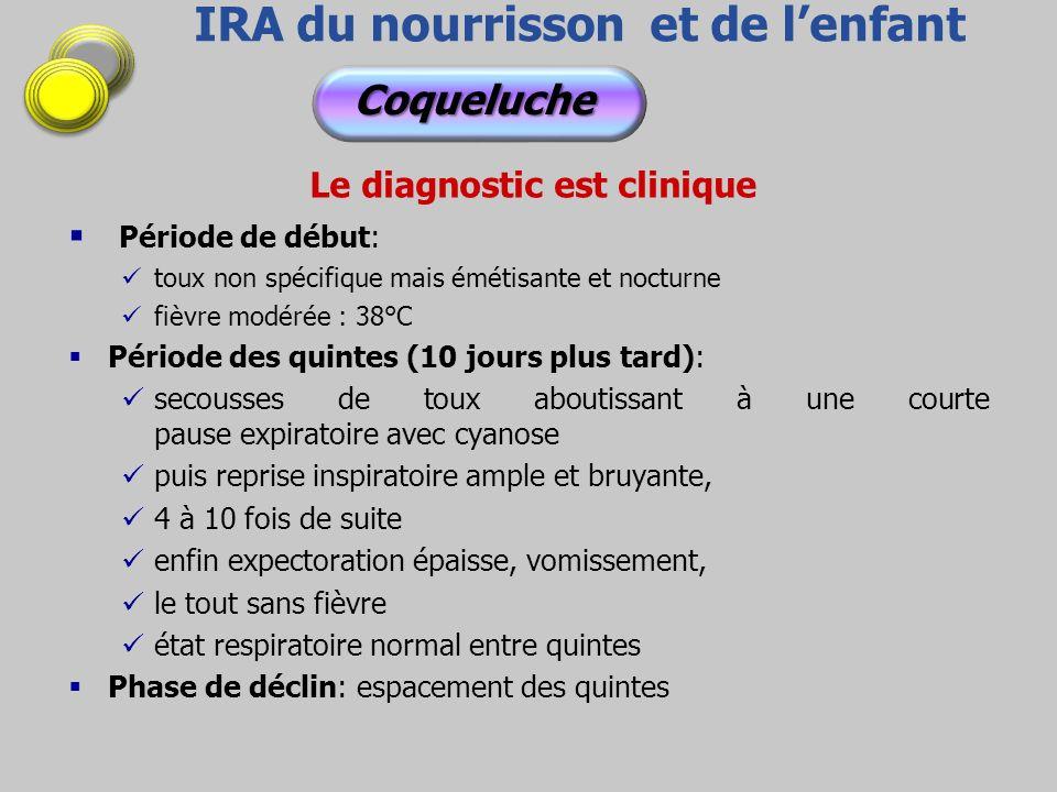 IRA du nourrisson et de lenfant Le diagnostic est clinique Période de début: toux non spécifique mais émétisante et nocturne fièvre modérée : 38°C Pér