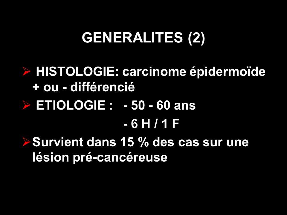 GENERALITES (2) HISTOLOGIE: carcinome épidermoïde + ou - différencié ETIOLOGIE : - 50 - 60 ans - 6 H / 1 F Survient dans 15 % des cas sur une lésion p