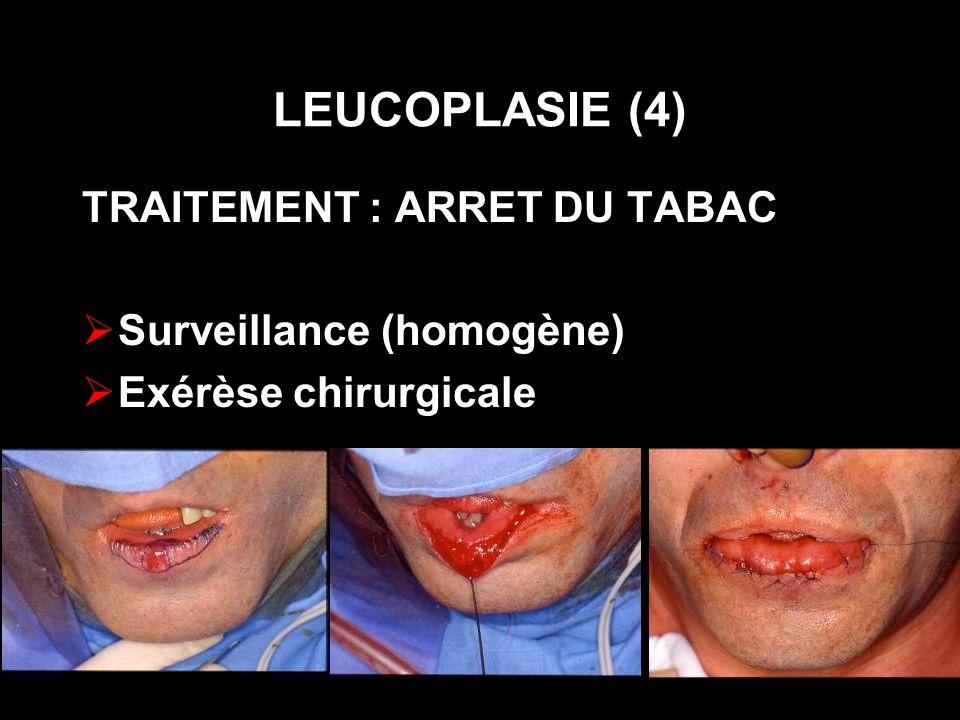 LEUCOPLASIE (4) TRAITEMENT : ARRET DU TABAC Surveillance (homogène) Exérèse chirurgicale