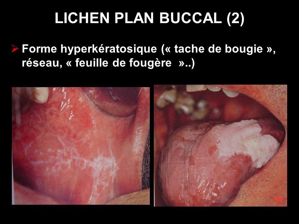 LICHEN PLAN BUCCAL (2) Forme hyperkératosique (« tache de bougie », réseau, « feuille de fougère »..)