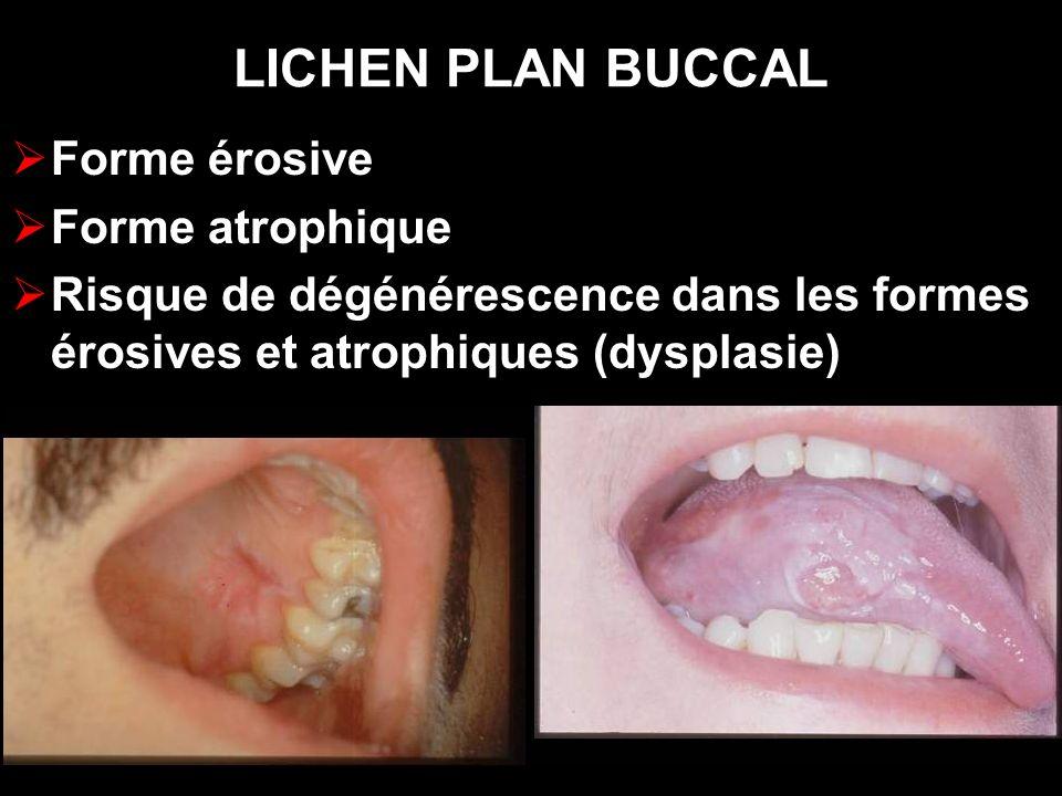 LICHEN PLAN BUCCAL Forme érosive Forme atrophique Risque de dégénérescence dans les formes érosives et atrophiques (dysplasie)