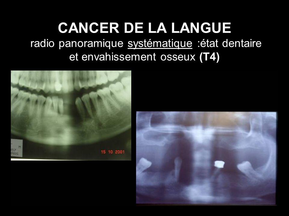 CANCER DE LA LANGUE radio panoramique systématique :état dentaire et envahissement osseux (T4)