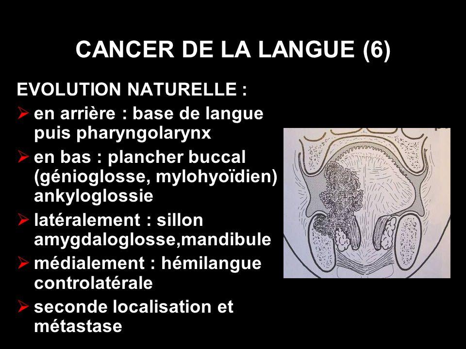 CANCER DE LA LANGUE (6) EVOLUTION NATURELLE : en arrière : base de langue puis pharyngolarynx en bas : plancher buccal (génioglosse, mylohyoïdien) : a