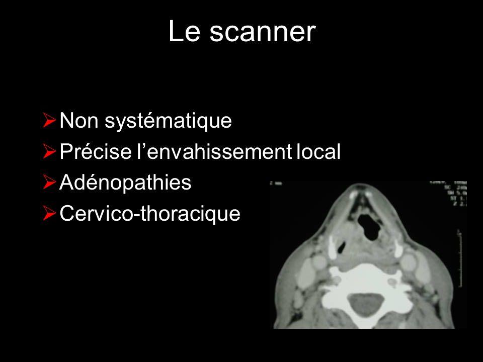 Le scanner Non systématique Précise lenvahissement local Adénopathies Cervico-thoracique