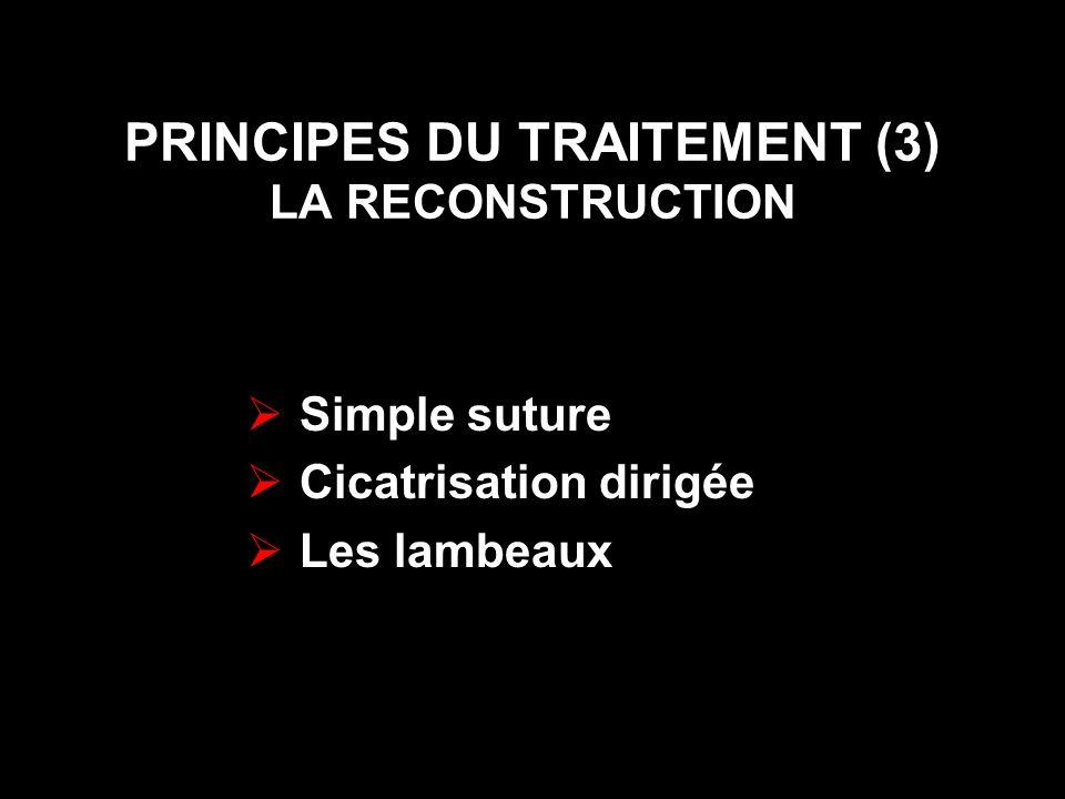 PRINCIPES DU TRAITEMENT (3) LA RECONSTRUCTION Simple suture Cicatrisation dirigée Les lambeaux