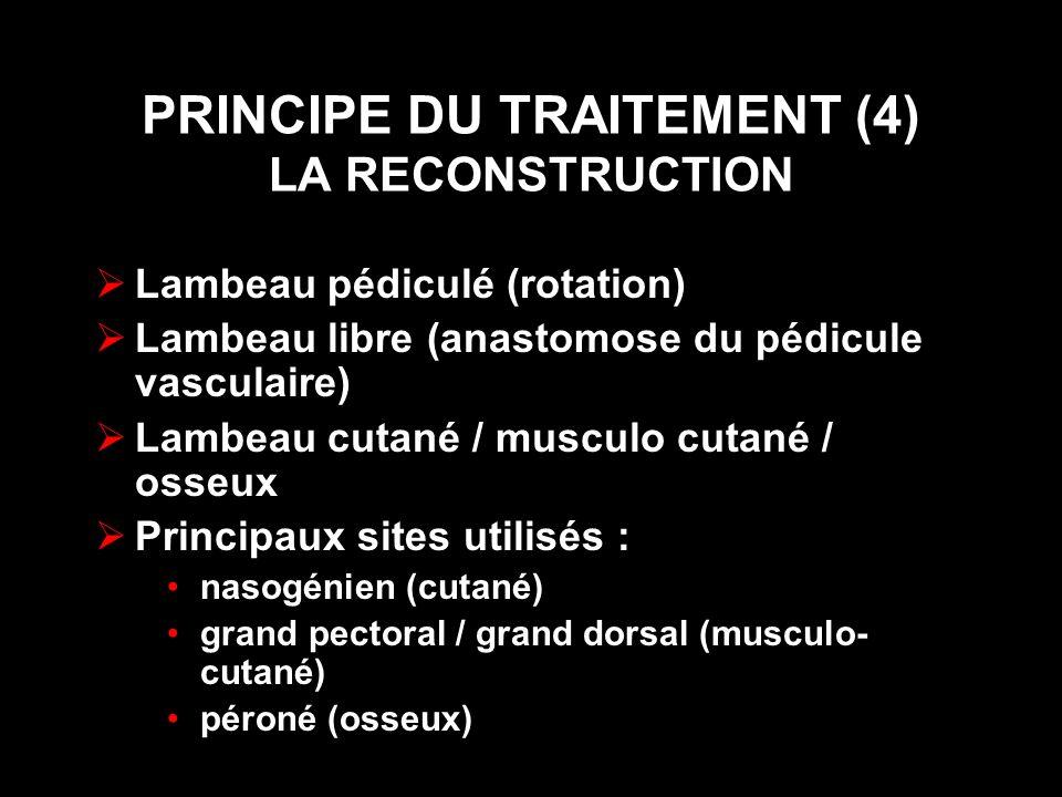 PRINCIPE DU TRAITEMENT (4) LA RECONSTRUCTION Lambeau pédiculé (rotation) Lambeau libre (anastomose du pédicule vasculaire) Lambeau cutané / musculo cutané / osseux Principaux sites utilisés : nasogénien (cutané) grand pectoral / grand dorsal (musculo- cutané) péroné (osseux)