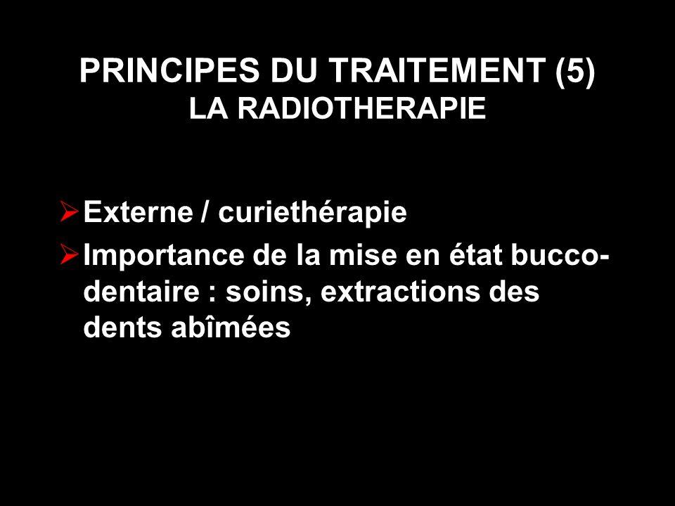PRINCIPES DU TRAITEMENT (5) LA RADIOTHERAPIE Externe / curiethérapie Importance de la mise en état bucco- dentaire : soins, extractions des dents abîm