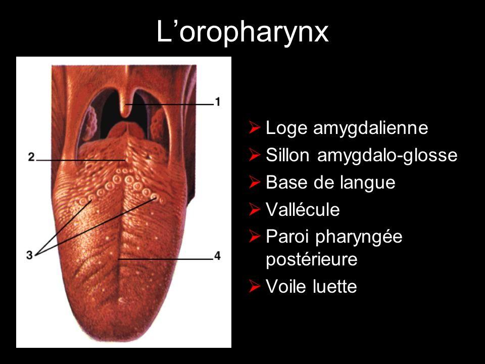 Lhypopharynx Sinus piriformes bouche oesophagienne Paroi pharyngée postérieure Mur pharyngo-laryngé Rétrocricoïde Paroi pharyngée latérale Trois replis