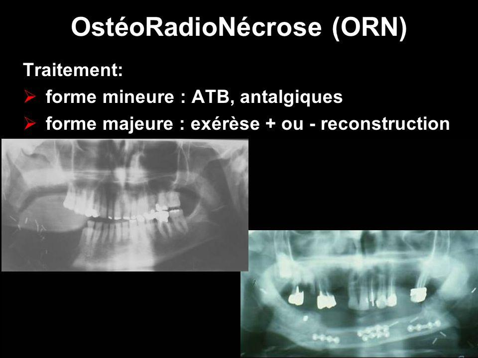 OstéoRadioNécrose (ORN) Traitement: forme mineure : ATB, antalgiques forme majeure : exérèse + ou - reconstruction