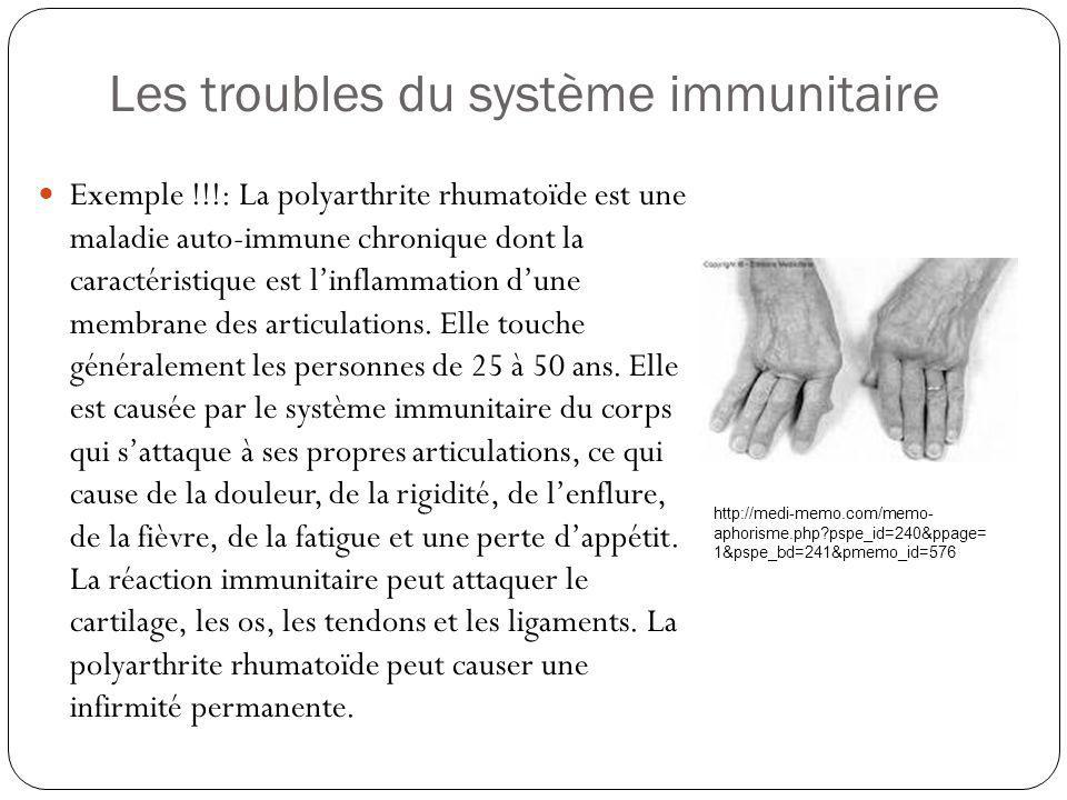 Exemple !!!: La polyarthrite rhumatoïde est une maladie auto-immune chronique dont la caractéristique est linflammation dune membrane des articulation
