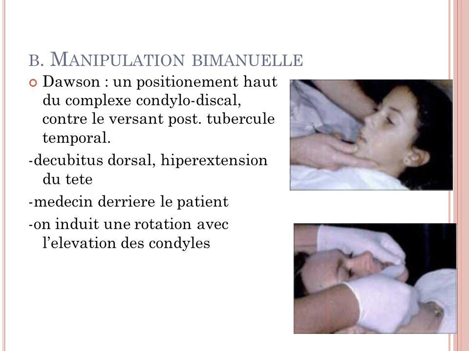 B. M ANIPULATION BIMANUELLE Dawson : un positionement haut du complexe condylo-discal, contre le versant post. tubercule temporal. -decubitus dorsal,