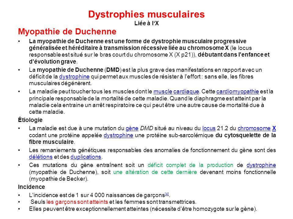 Dystrophies musculaires Liée à lX Myopathie de Duchenne La myopathie de Duchenne est une forme de dystrophie musculaire progressive généralisée et hér