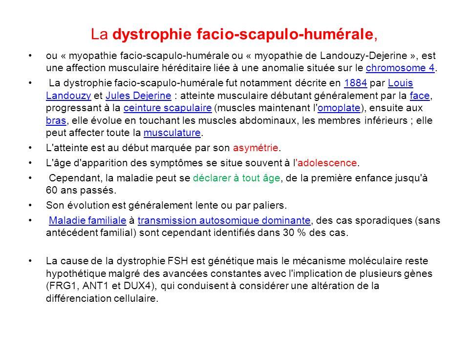 La dystrophie facio-scapulo-humérale, ou « myopathie facio-scapulo-humérale ou « myopathie de Landouzy-Dejerine », est une affection musculaire hérédi