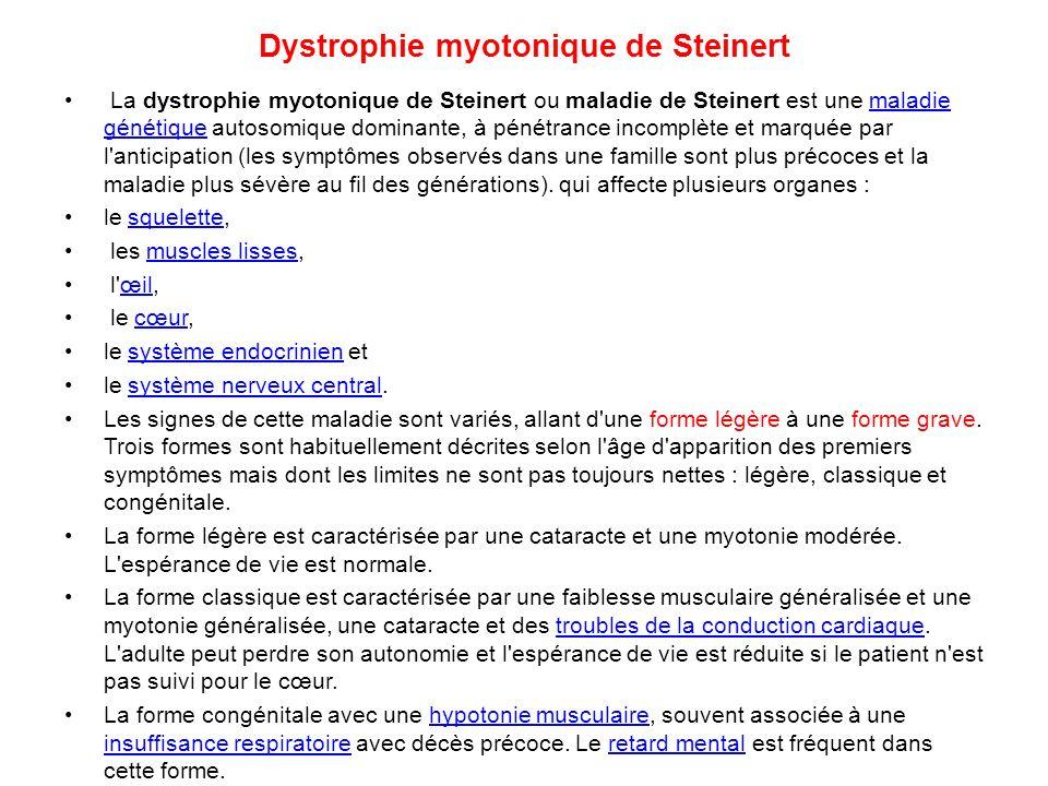 Dystrophie myotonique de Steinert La dystrophie myotonique de Steinert ou maladie de Steinert est une maladie génétique autosomique dominante, à pénét