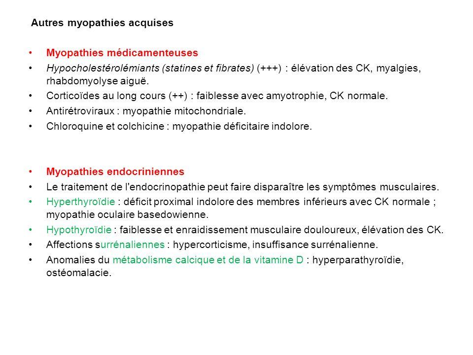 Autres myopathies acquises Myopathies médicamenteuses Hypocholestérolémiants (statines et fibrates) (+++) : élévation des CK, myalgies, rhabdomyolyse
