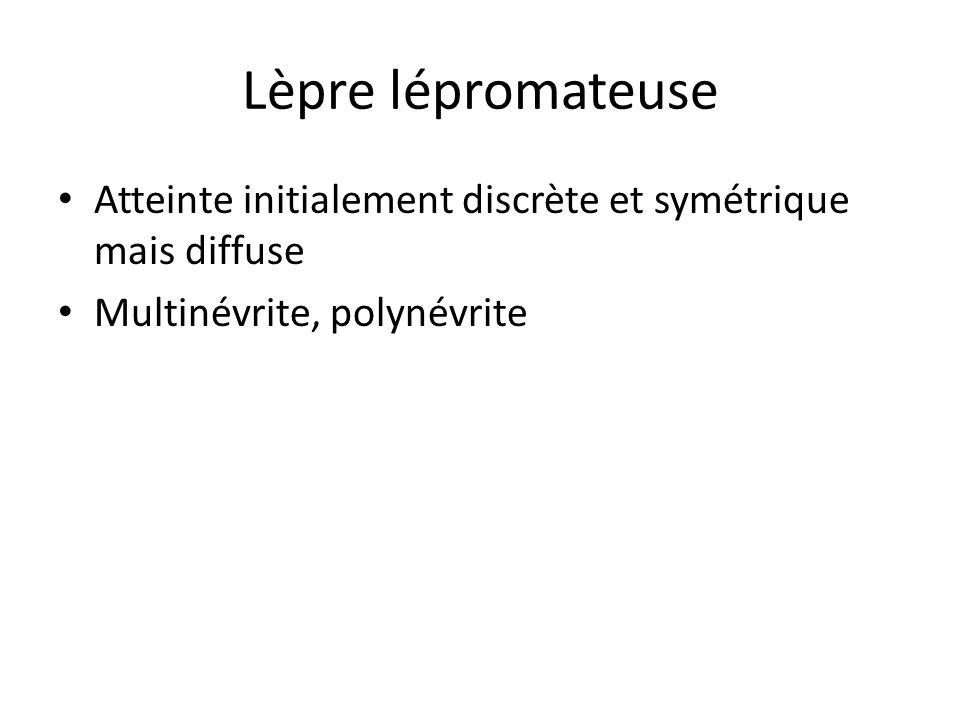 Lèpre lépromateuse Atteinte initialement discrète et symétrique mais diffuse Multinévrite, polynévrite