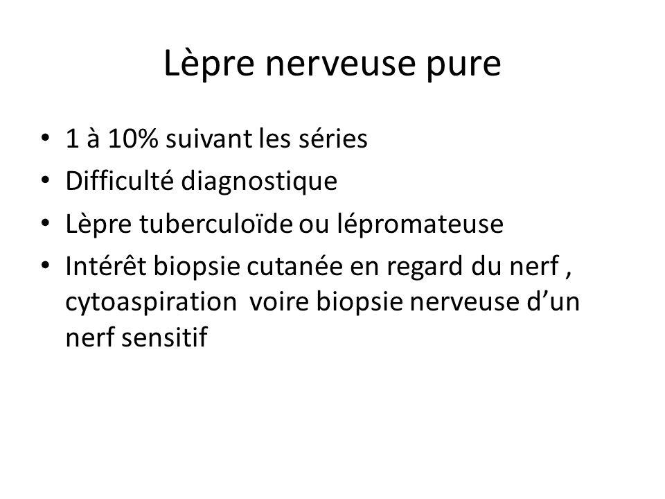 Lèpre nerveuse pure 1 à 10% suivant les séries Difficulté diagnostique Lèpre tuberculoïde ou lépromateuse Intérêt biopsie cutanée en regard du nerf, c