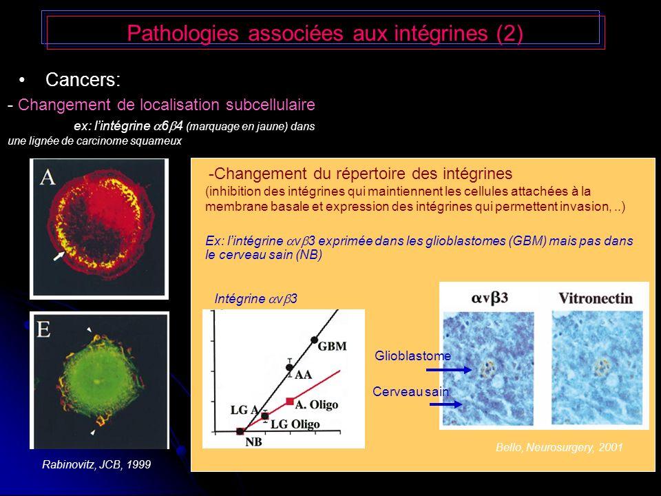 Pathologies associées aux intégrines (2) Cancers: - Changement de localisation subcellulaire ex: lintégrine 6 4 (marquage en jaune) dans une lignée de carcinome squameux Bello, Neurosurgery, 2001 -Changement du répertoire des intégrines (inhibition des intégrines qui maintiennent les cellules attachées à la membrane basale et expression des intégrines qui permettent invasion,..) Ex: lintégrine v 3 exprimée dans les glioblastomes (GBM) mais pas dans le cerveau sain (NB) Intégrine v 3 Cerveau sain Glioblastome Rabinovitz, JCB, 1999