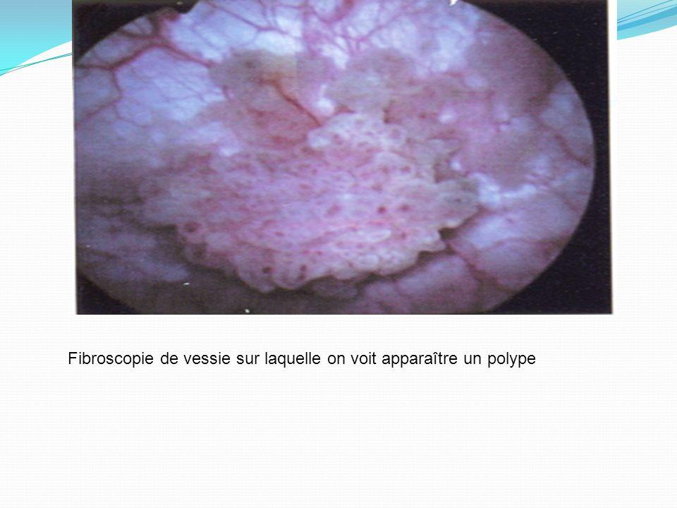 Fibroscopie de vessie sur laquelle on voit apparaître un polype
