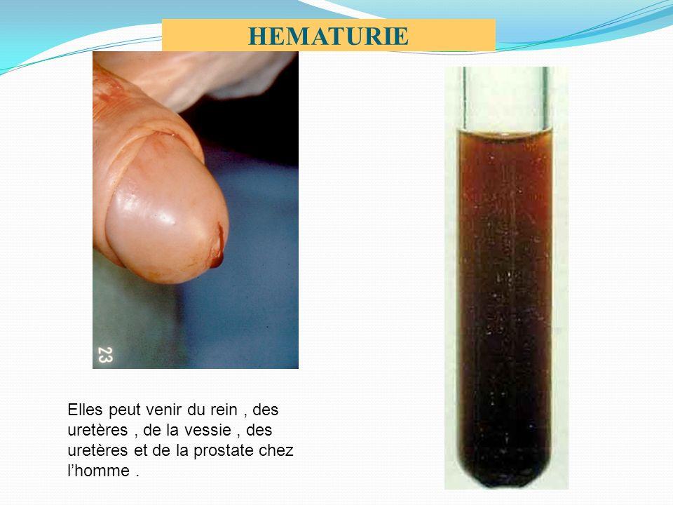 HEMATURIE Elles peut venir du rein, des uretères, de la vessie, des uretères et de la prostate chez lhomme.