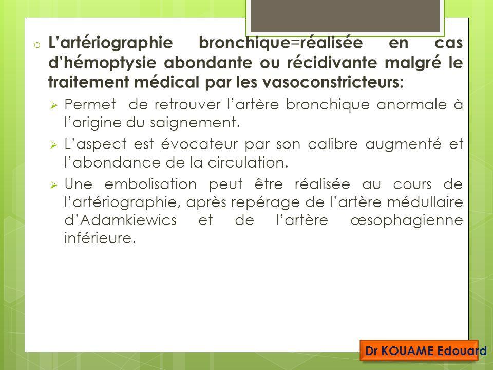 o Lartériographie bronchique = réalisée en cas dhémoptysie abondante ou récidivante malgré le traitement médical par les vasoconstricteurs: Permet de retrouver lartère bronchique anormale à lorigine du saignement.