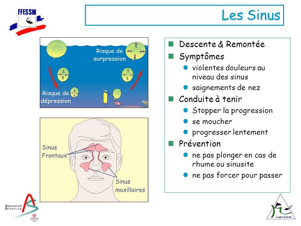 Les Sinus Descente & Remontée Symptômes violentes douleurs au niveau des sinus saignements de nez Conduite à tenir Stopper la progression se moucher p