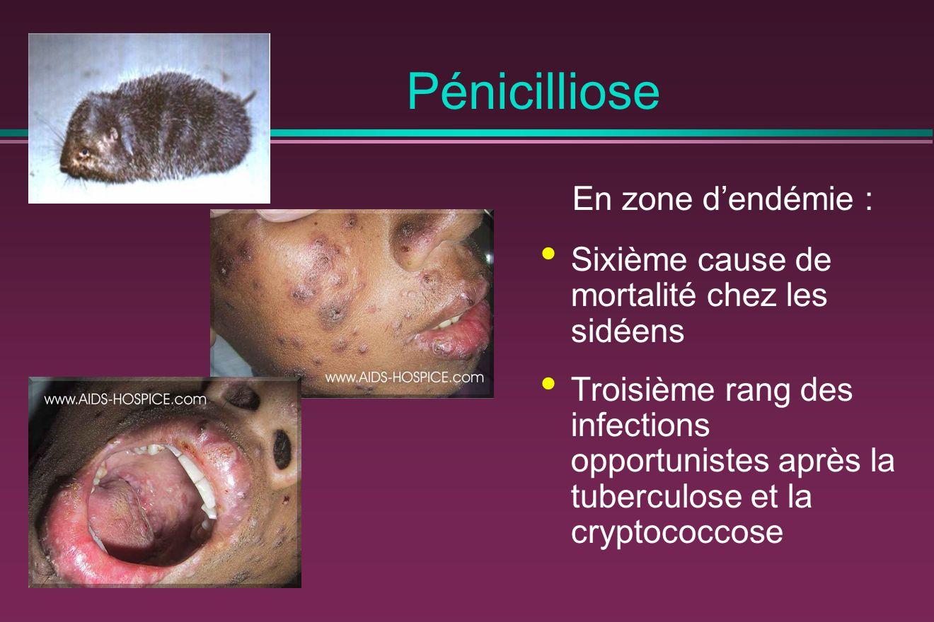 Pénicilliose En zone dendémie : Sixième cause de mortalité chez les sidéens Troisième rang des infections opportunistes après la tuberculose et la cryptococcose