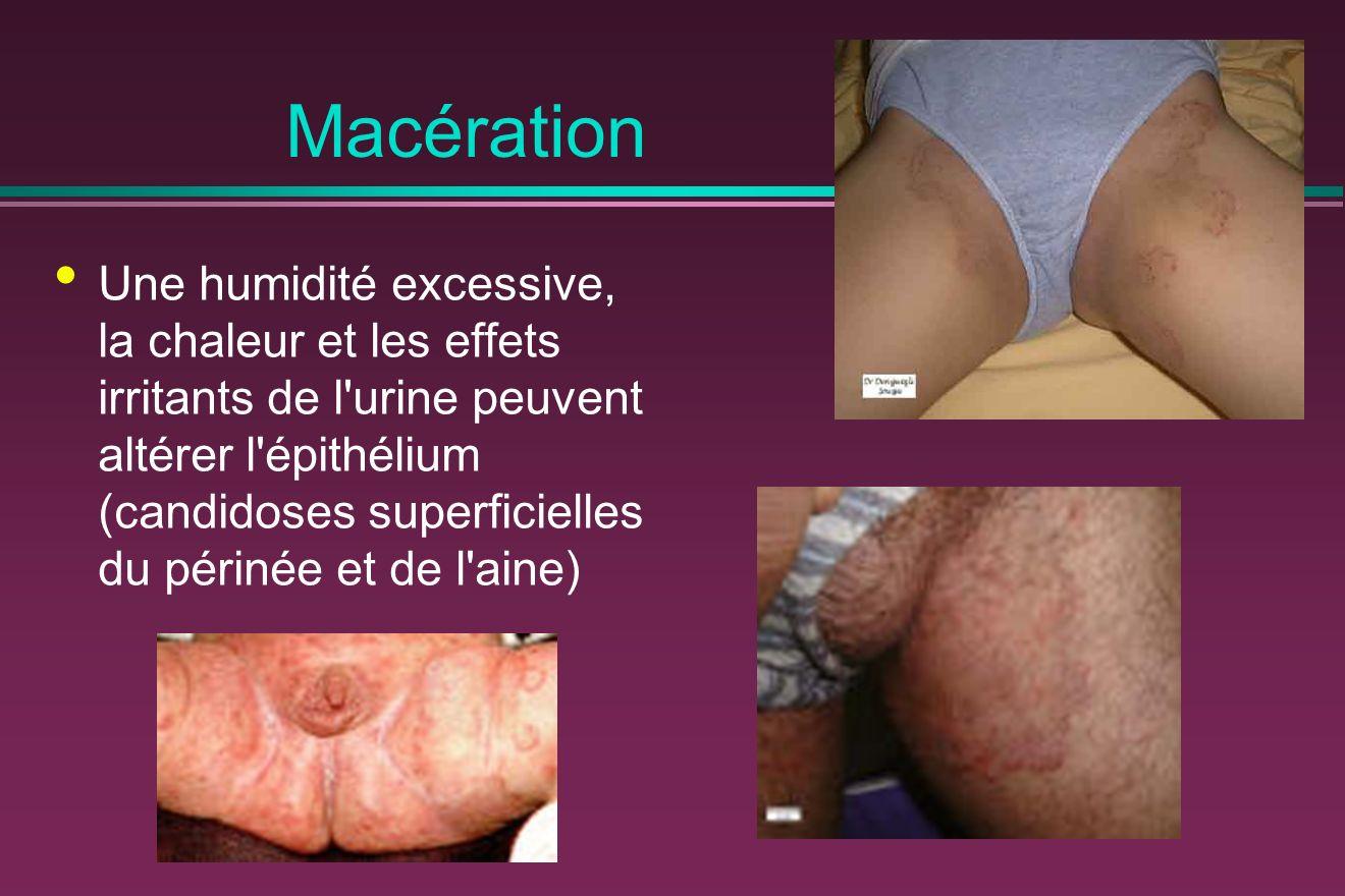 Macération Une humidité excessive, la chaleur et les effets irritants de l urine peuvent altérer l épithélium (candidoses superficielles du périnée et de l aine)