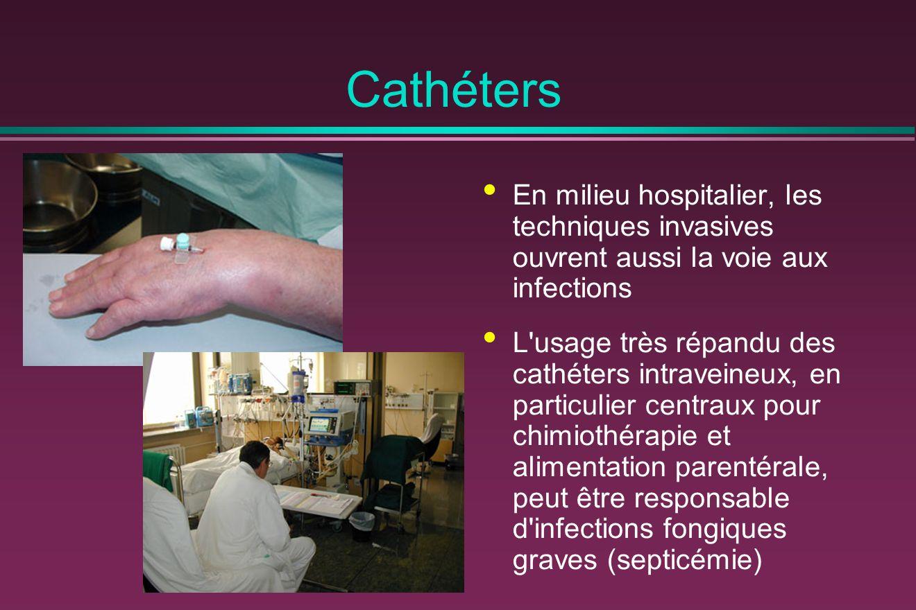 Cathéters En milieu hospitalier, les techniques invasives ouvrent aussi la voie aux infections L usage très répandu des cathéters intraveineux, en particulier centraux pour chimiothérapie et alimentation parentérale, peut être responsable d infections fongiques graves (septicémie)