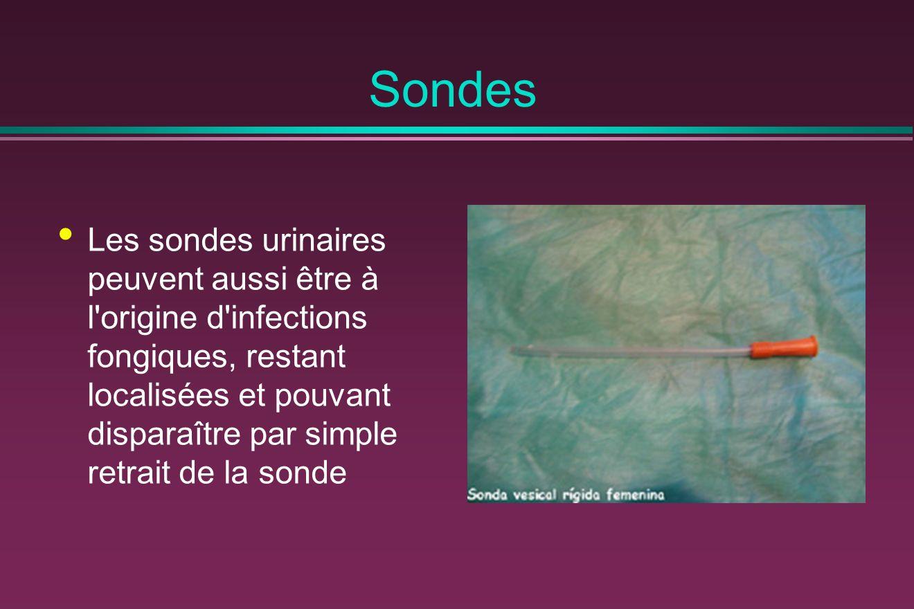 Sondes Les sondes urinaires peuvent aussi être à l origine d infections fongiques, restant localisées et pouvant disparaître par simple retrait de la sonde