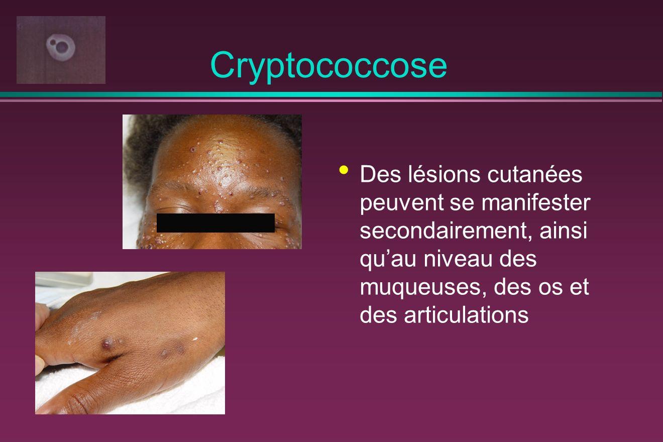 Cryptococcose Des lésions cutanées peuvent se manifester secondairement, ainsi quau niveau des muqueuses, des os et des articulations