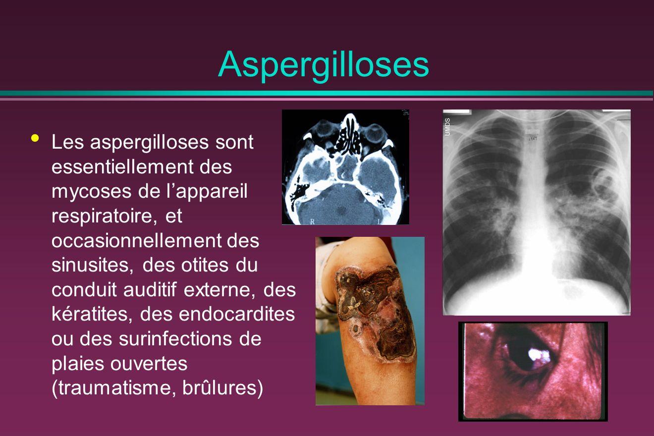 Aspergilloses Les aspergilloses sont essentiellement des mycoses de lappareil respiratoire, et occasionnellement des sinusites, des otites du conduit auditif externe, des kératites, des endocardites ou des surinfections de plaies ouvertes (traumatisme, brûlures)