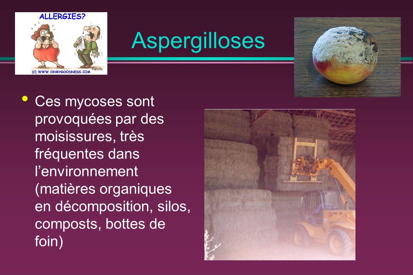 Aspergilloses Ces mycoses sont provoquées par des moisissures, très fréquentes dans lenvironnement (matières organiques en décomposition, silos, composts, bottes de foin)