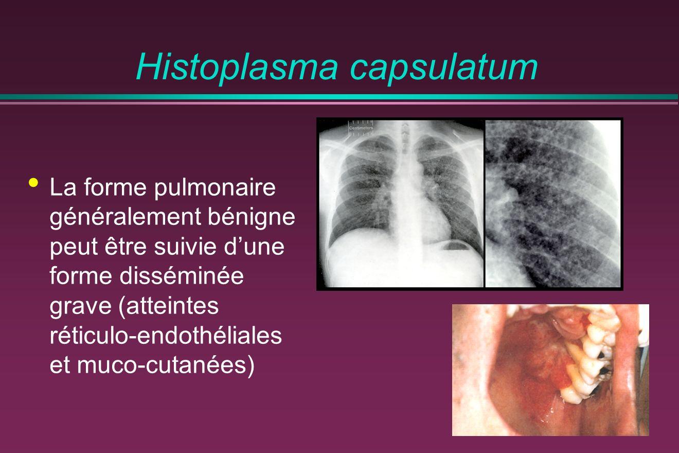 Histoplasma capsulatum La forme pulmonaire généralement bénigne peut être suivie dune forme disséminée grave (atteintes réticulo-endothéliales et muco-cutanées)