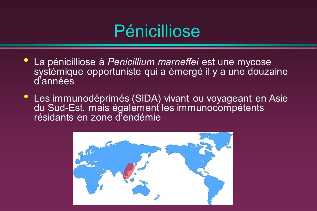Pénicilliose La pénicilliose à Penicillium marneffei est une mycose systémique opportuniste qui a émergé il y a une douzaine dannées Les immunodéprimés (SIDA) vivant ou voyageant en Asie du Sud-Est, mais également les immunocompétents résidants en zone dendémie