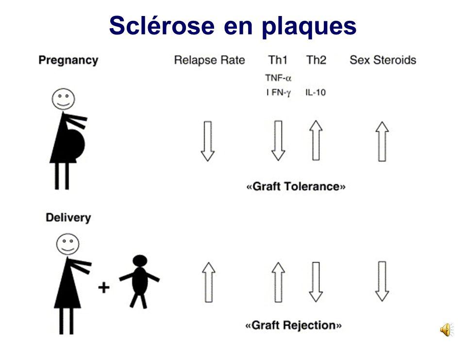 Maladies auto-immunes et grossesse: cours évolutif naturel Pathologies à autoanticorps (TH2) –LES –PTI –Syndrome des anti- phospholipides –Poussées pe