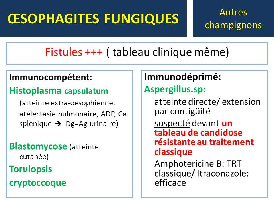 Immunocompétent: Histoplasma capsulatum (atteinte extra-oesophienne: atélectasie pulmonaire, ADP, Ca splénique Dg=Ag urinaire) Blastomycose (atteinte