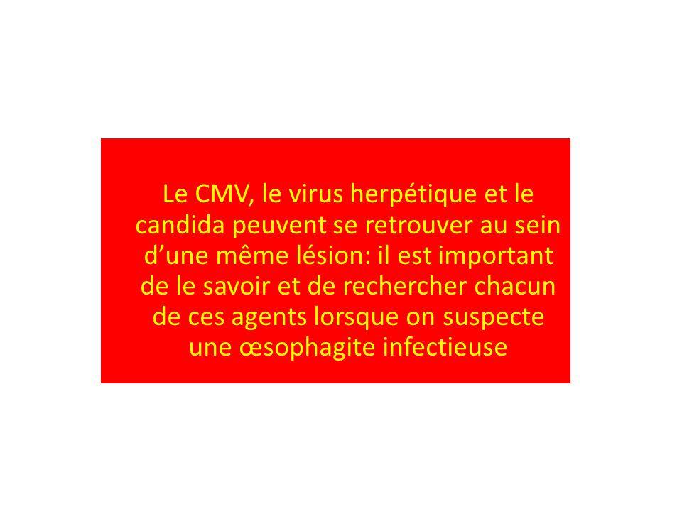 Le CMV, le virus herpétique et le candida peuvent se retrouver au sein dune même lésion: il est important de le savoir et de rechercher chacun de ces