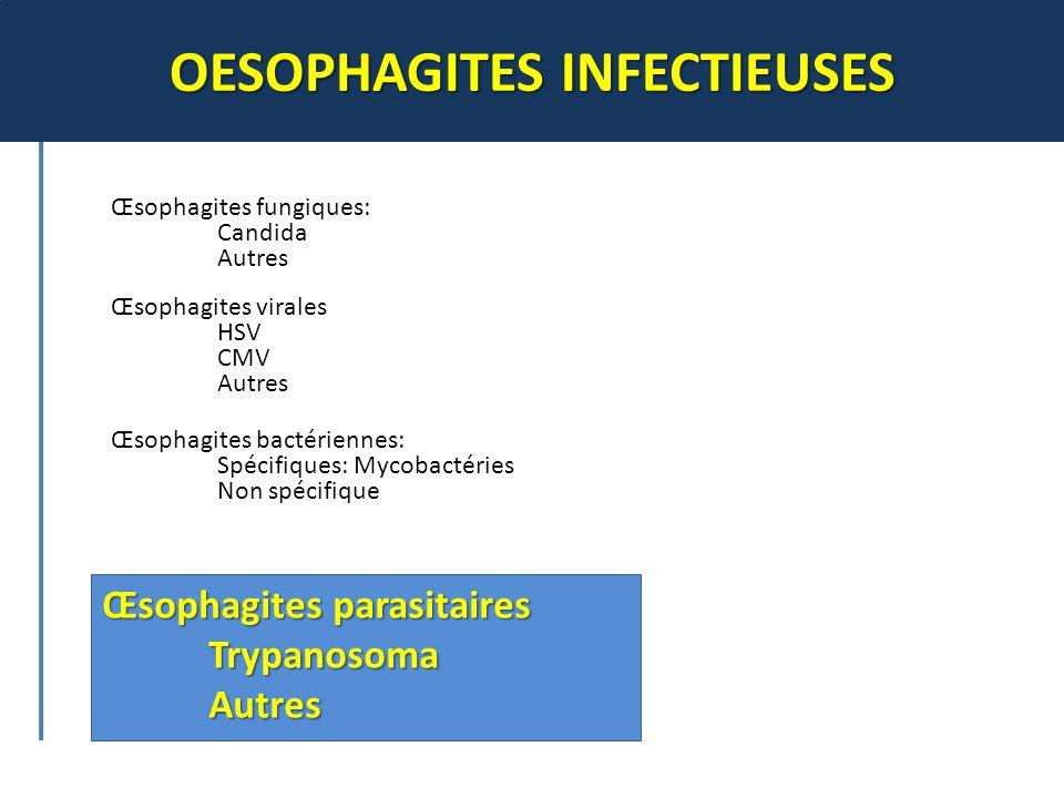 OESOPHAGITES INFECTIEUSES Œsophagites parasitaires TrypanosomaAutres Œsophagites fungiques: Candida Autres Œsophagites virales HSV CMV Autres Œsophagi