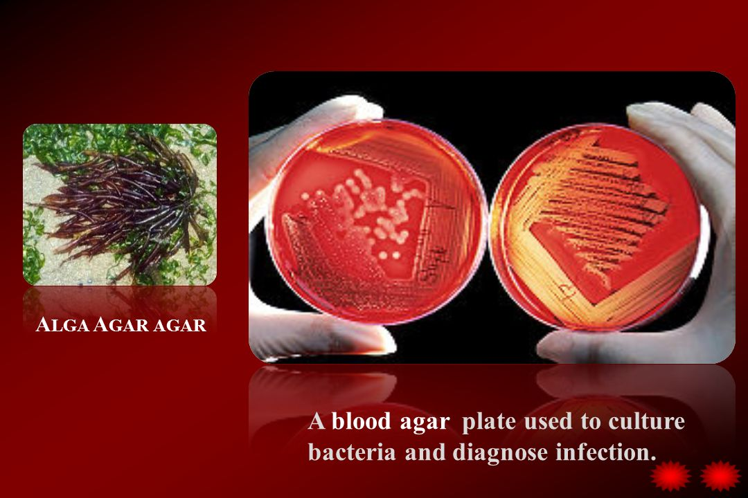 A blood agar plate used to culture bacteria and diagnose infection. A LGA A GAR AGAR
