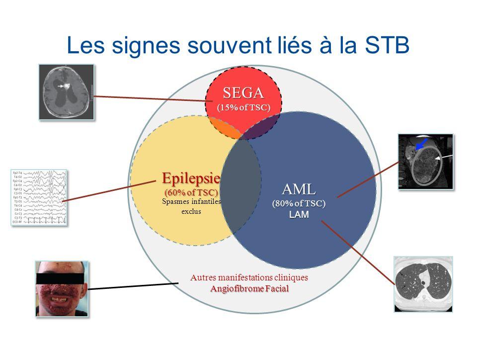 Les signes souvent liés à la STB SEGA (15% of TSC) Epilepsie (60% of TSC) AML (80% of TSC) LAM Angiofibrome Facial Autres manifestations cliniques Ang