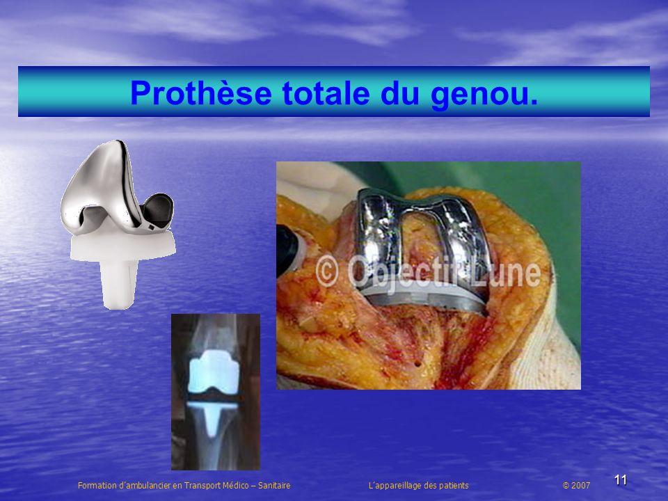 11 Prothèse totale du genou. Formation dambulancier en Transport Médico – Sanitaire Lappareillage des patients © 2007