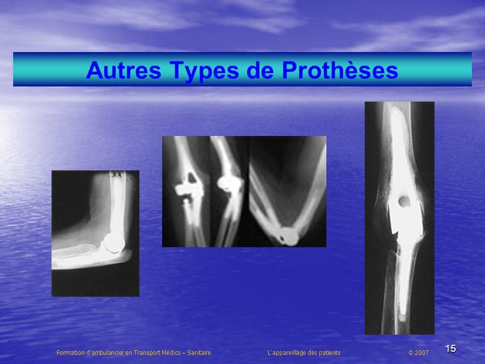 15 Autres Types de Prothèses Formation dambulancier en Transport Médico – Sanitaire Lappareillage des patients © 2007