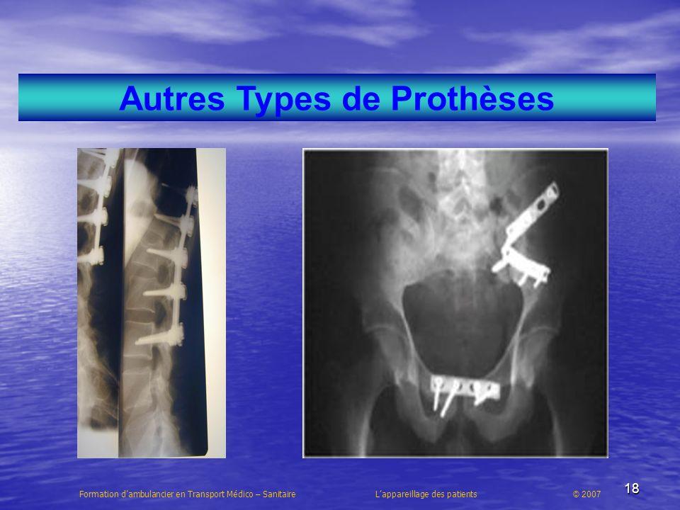 18 Autres Types de Prothèses Formation dambulancier en Transport Médico – Sanitaire Lappareillage des patients © 2007