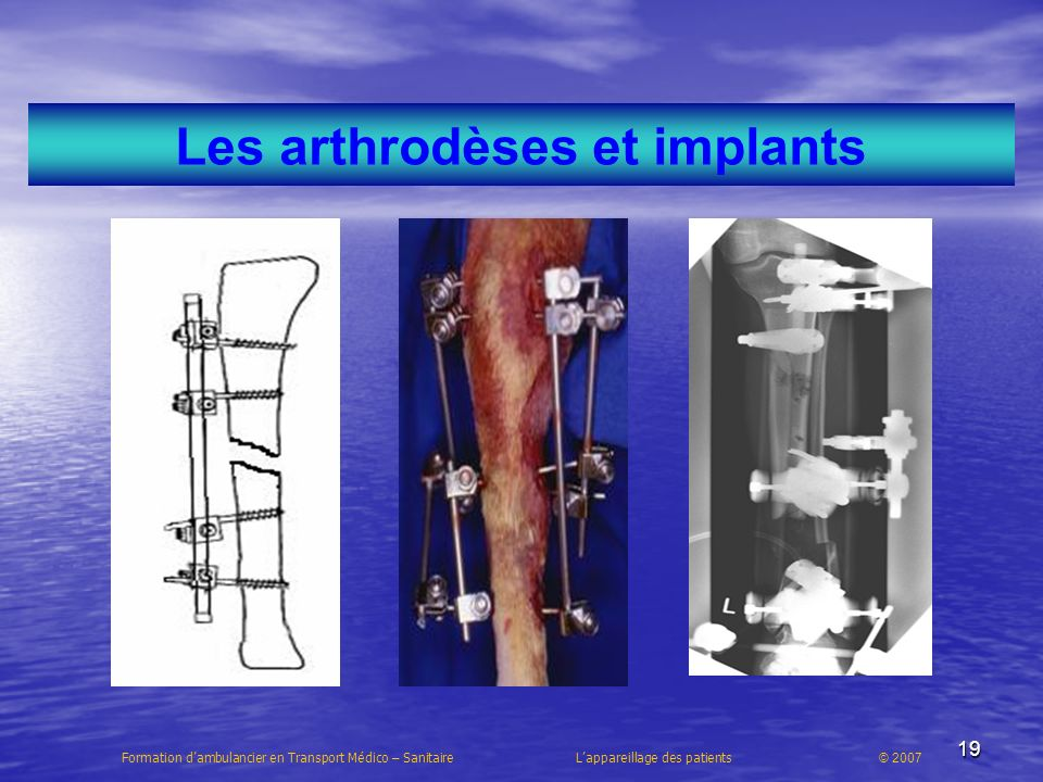 19 Les arthrodèses et implants Formation dambulancier en Transport Médico – Sanitaire Lappareillage des patients © 2007