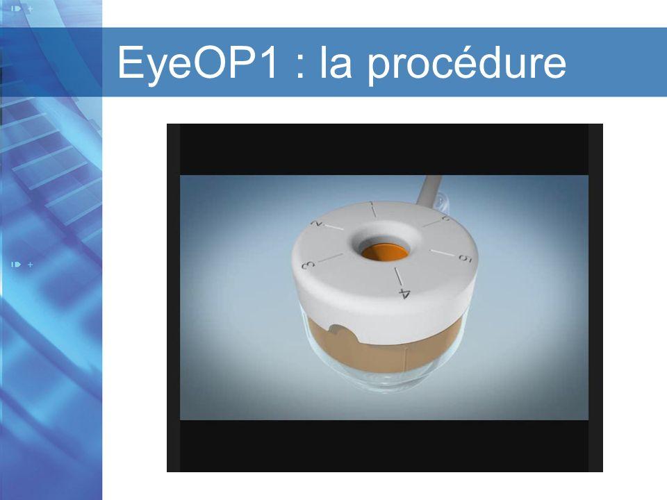 Titre de la présentation I Titre du chapitre I Version 1.1 I Date EyeOP1 : la procédure