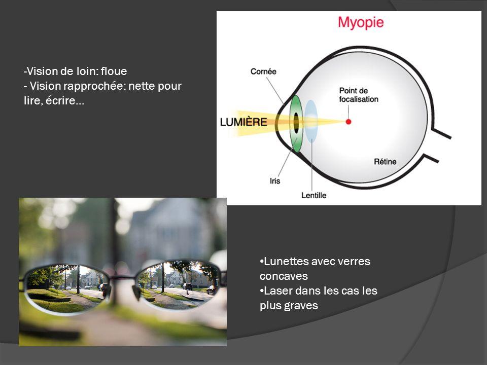 -Vision de loin: floue - Vision rapprochée: nette pour lire, écrire… Lunettes avec verres concaves Laser dans les cas les plus graves