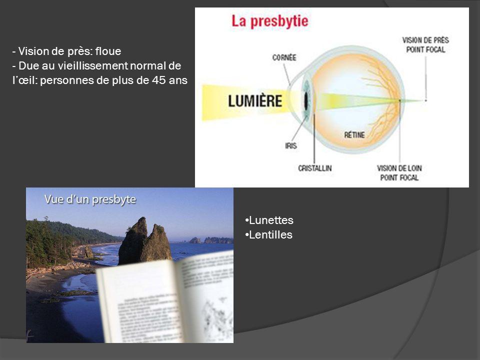 - Vision de près: floue - Due au vieillissement normal de lœil: personnes de plus de 45 ans Lunettes Lentilles