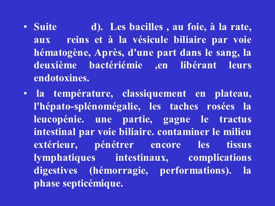 Suite d).