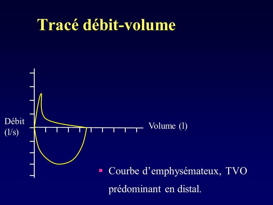 Tracé débit-volume Courbe demphysémateux, TVO prédominant en distal. Débit (l/s) Volume (l)